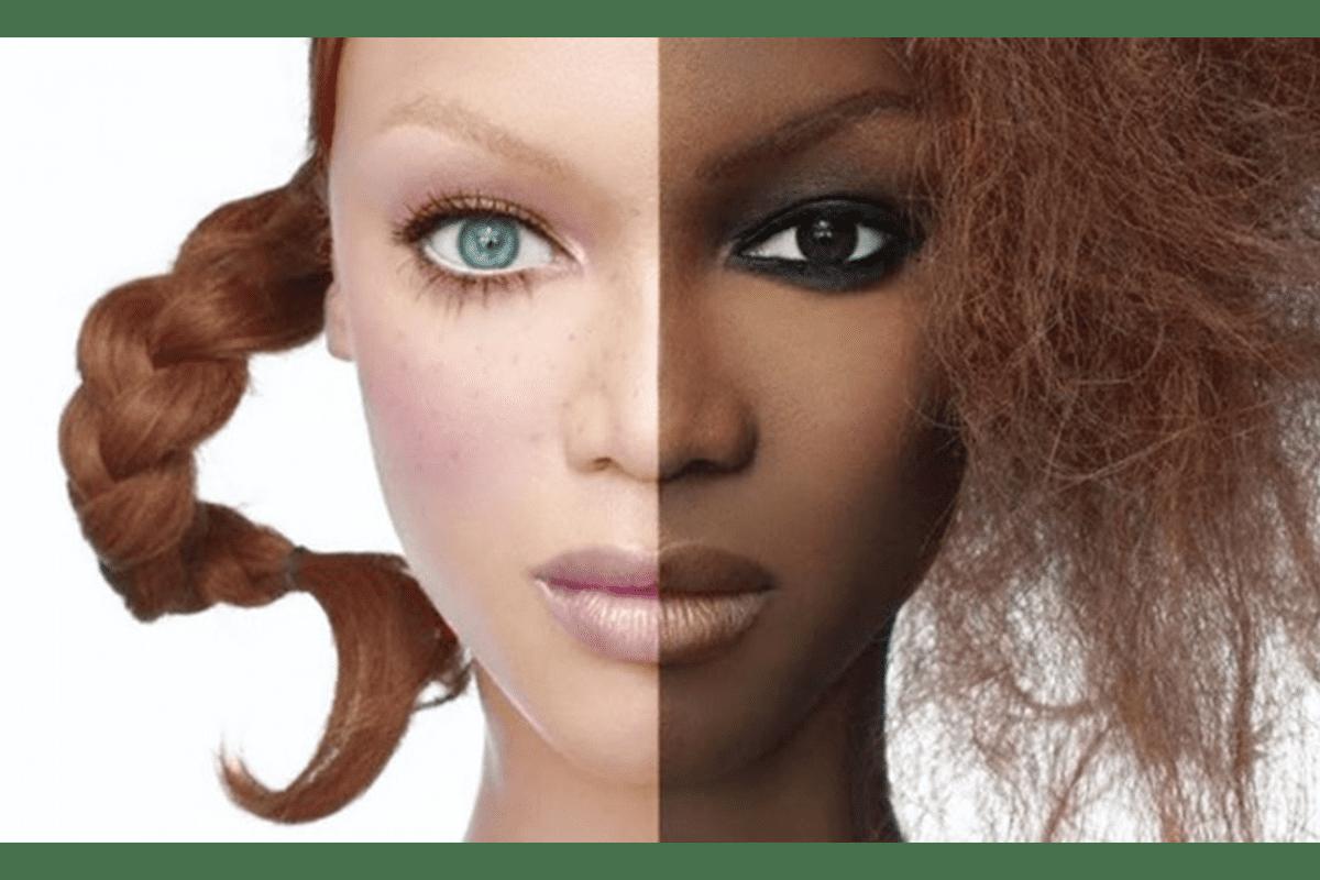Read more about the article Je me dépigmentais la peau, comment la soigner après ?